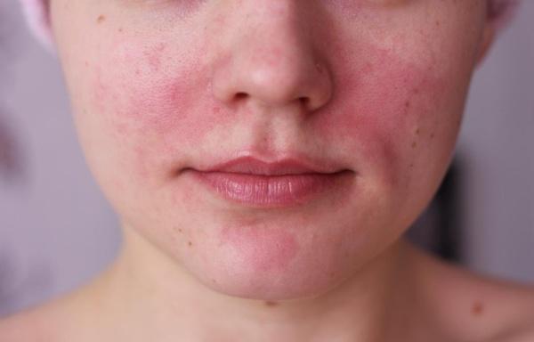 Vörös foltok a háton: kiütések okai, hogyan kell kezelni
