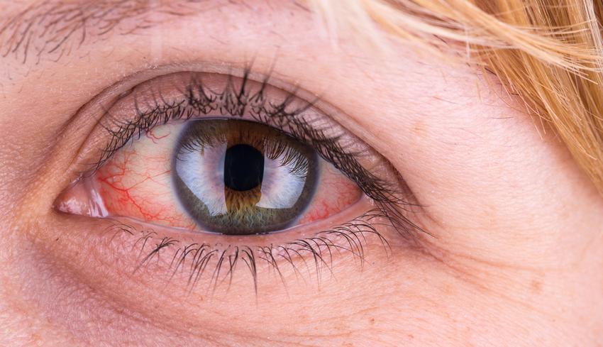 az alsó szemhéjon a vörös folt hámlik)