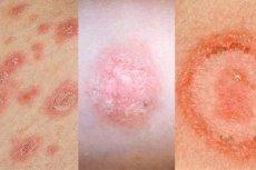 fotó vörös foltok a bőrön HIV-vel)