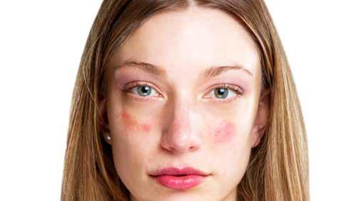 Piros foltok a baba arcán