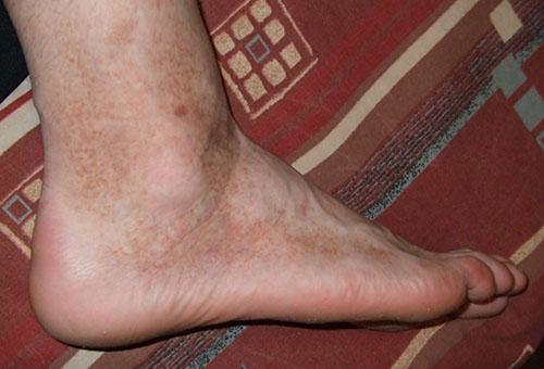 a lábak bőrét vörös foltok borítják