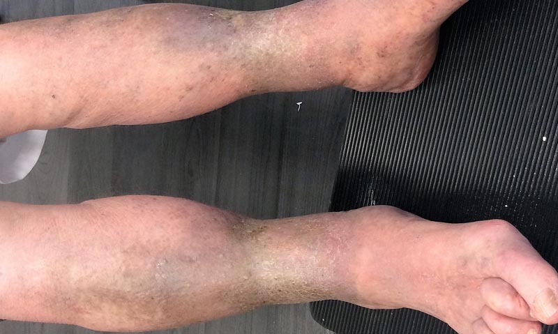 piros feszes folt a lábán