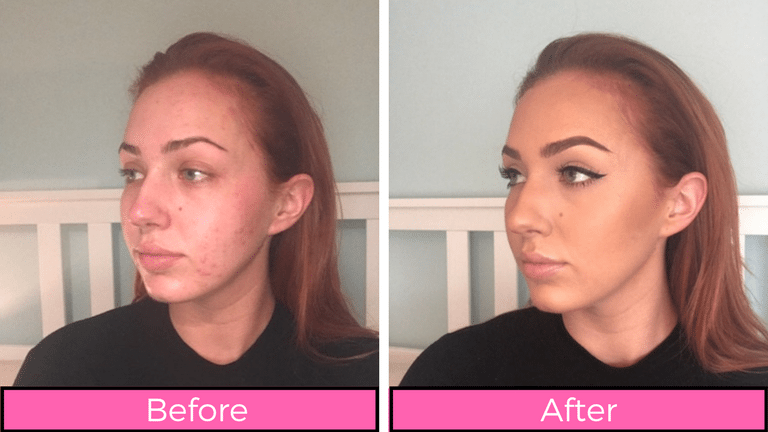 lotion clear skin from psoriasis reviews