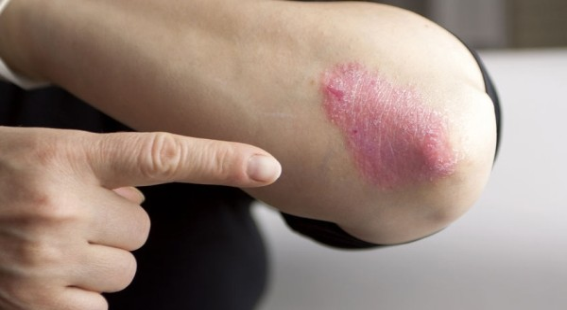hogyan kezeljük a bőrt belülről pikkelysömörrel