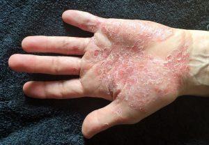 hogyan kell kezelni a pikkelysömör chagoy Holt-tengeri iszap kezelése pikkelysömörhöz