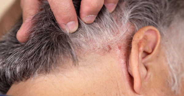 Ekcéma, Atópiás dermatitisz és a hajhullás - DR. IMMUN Hajhullás ellen