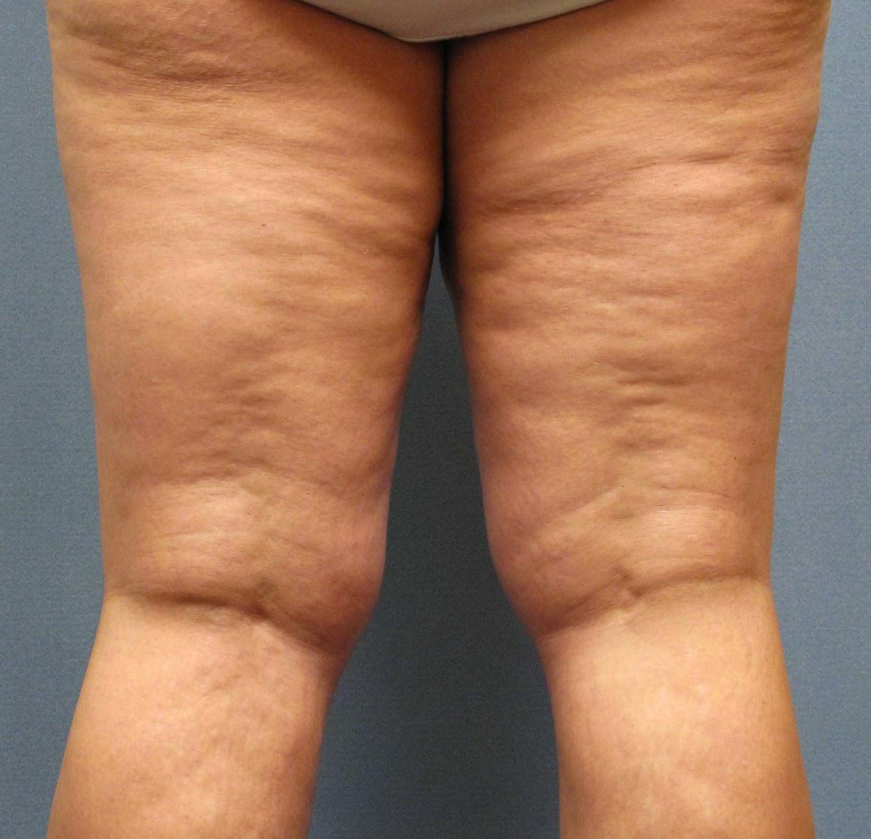vörös foltok a lábak között nőknél könnycsepp pikkelysömör kezelése népi gyógymódokkal