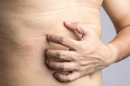 miért van egy piros folt a gyomorban
