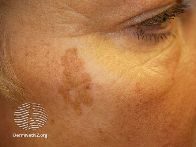 egy idős embernek vörös foltjai vannak az arcon)