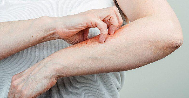 hogyan kell kezelni a pikkelysömör chagoy vörös foltok a verejtéktől a bőrön