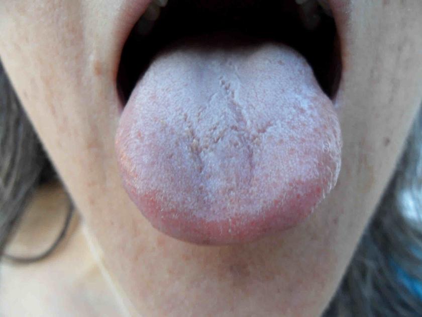 nyelv pikkelysömör kezelése