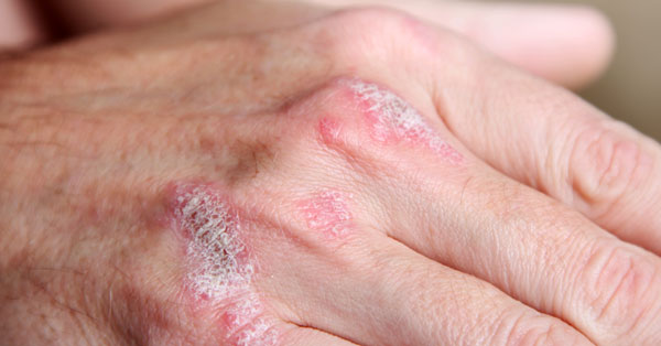 poliszorb hasznlat a pikkelysmr kezelsben vörös foltok jelennek meg a bőr kezelésén