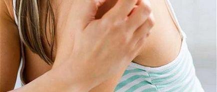 pikkelysömör kezelés kezdeti szakasza