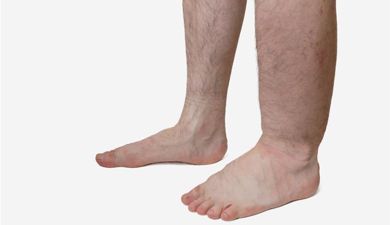 ahonnan vörös foltok jelennek meg a lábak között