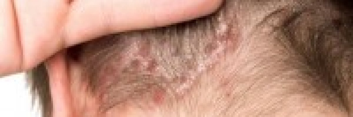 a fejbőrön lévő vörös foltok okai milyen kenőcsöt kell használni pikkelysömörhöz