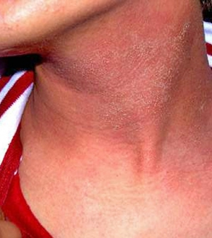 fotó vörös foltok a bőrön HIV-vel