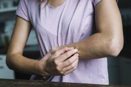 az arc kopása piros foltot hagyott kiütés a kezek bőrén vörös foltok formájában felnőtteknél viszketés fotó
