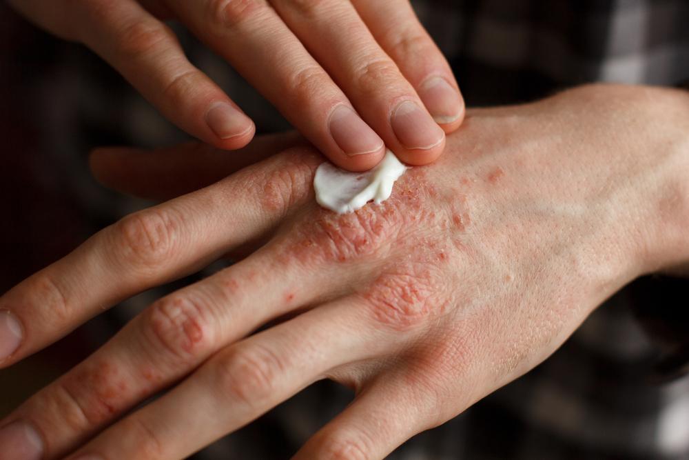 A pikkelysömör biológiai kezeléséről | Magyar Psoriasis Alapítvány