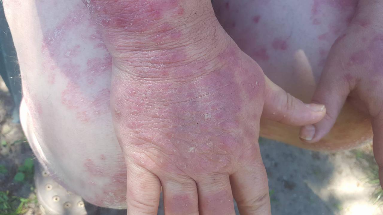 eukaliptusz pikkelysömör kezelése pikkelysömör hogyan kell kezelni 2 ek