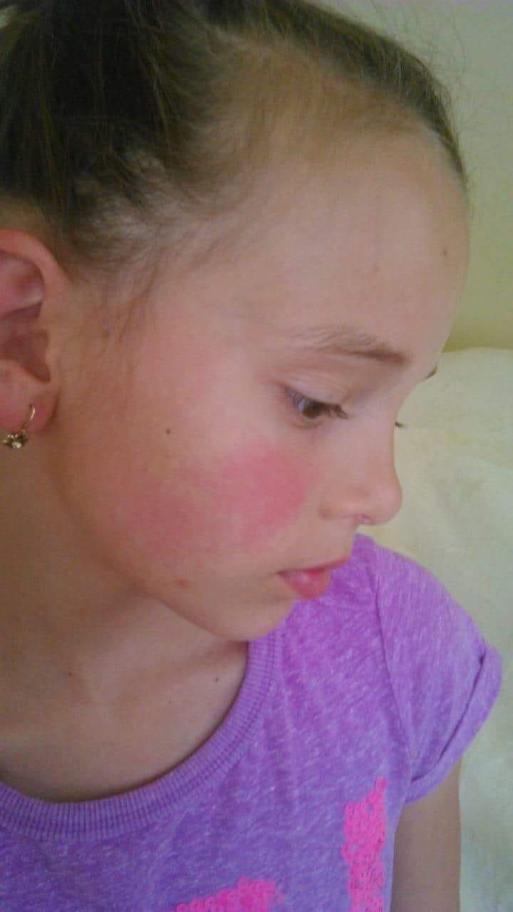 hogyan lehet eltávolítani a vörös foltokat a fején)