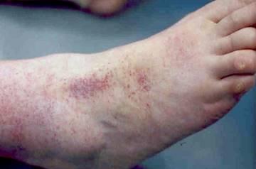 vörös foltok a kéz és a láb bőrén fotó