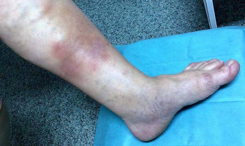 hogyan lehet gyógyítani a vörös foltokat a lábakon