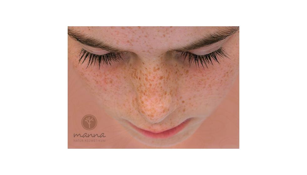 hogyan lehet megszabadulni az arcon lévő vörös pangó foltoktól gyógynövényes fürdők pikkelysömörhöz