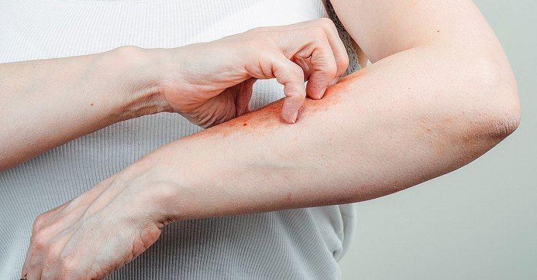 pikkelysömör cinocap kezelse vörös foltok egy felnőtt fotó hasán magyarázatokkal