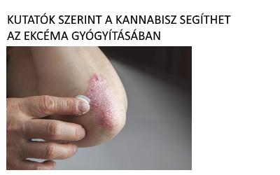 PikkelysĂśmĂśr kezelĂŠse