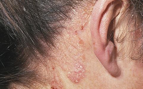 pikkelysömör kezelései a fejn pikkelysömör kezelése Kostanayban
