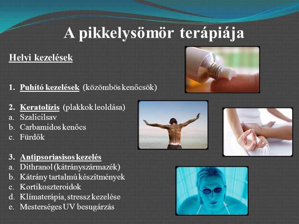 pikkelysömör vulgáris plakkos kezelés)