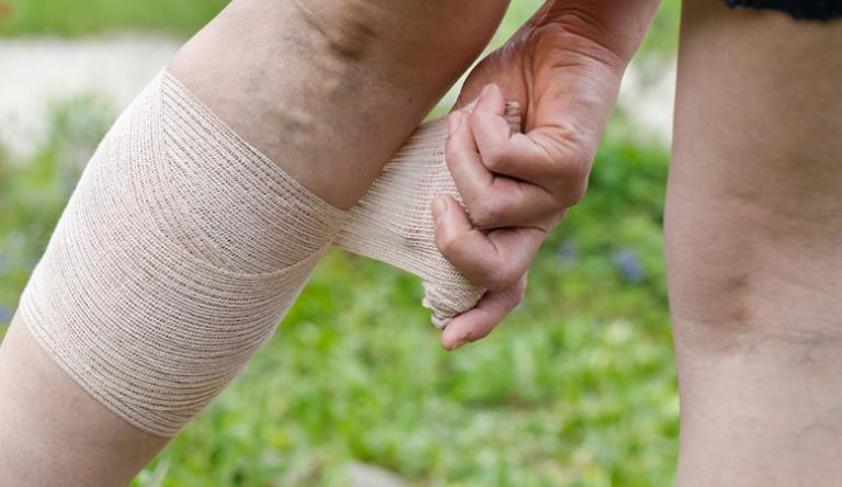 Pikkelysömöröm van és a lábam nagyon megdagadt, mint kezelni)
