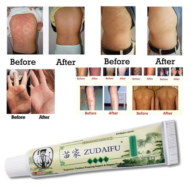 Scrap Psoriasis Cure Luxury)