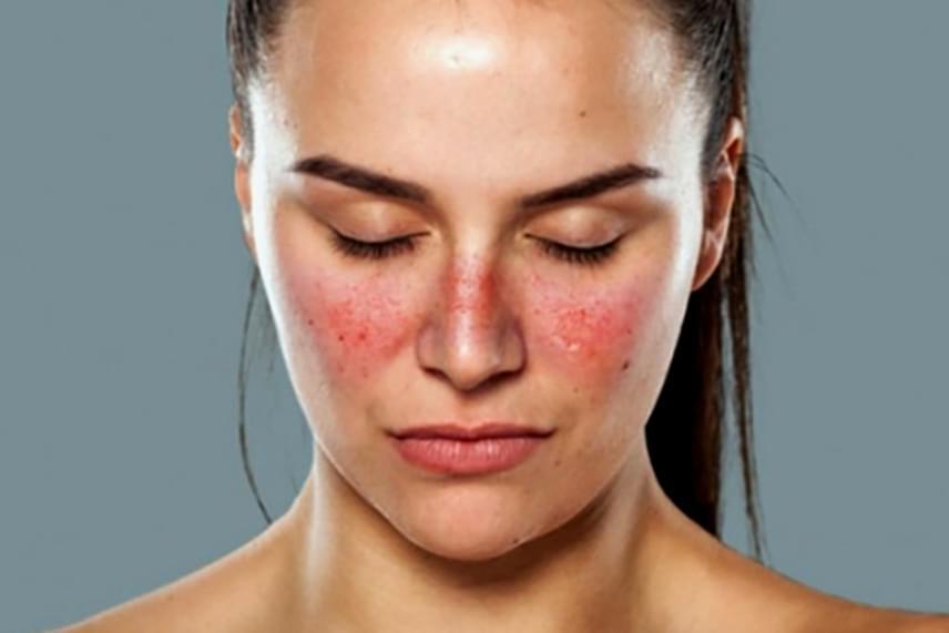 súlyos viszketés az arcon és vörös foltok)