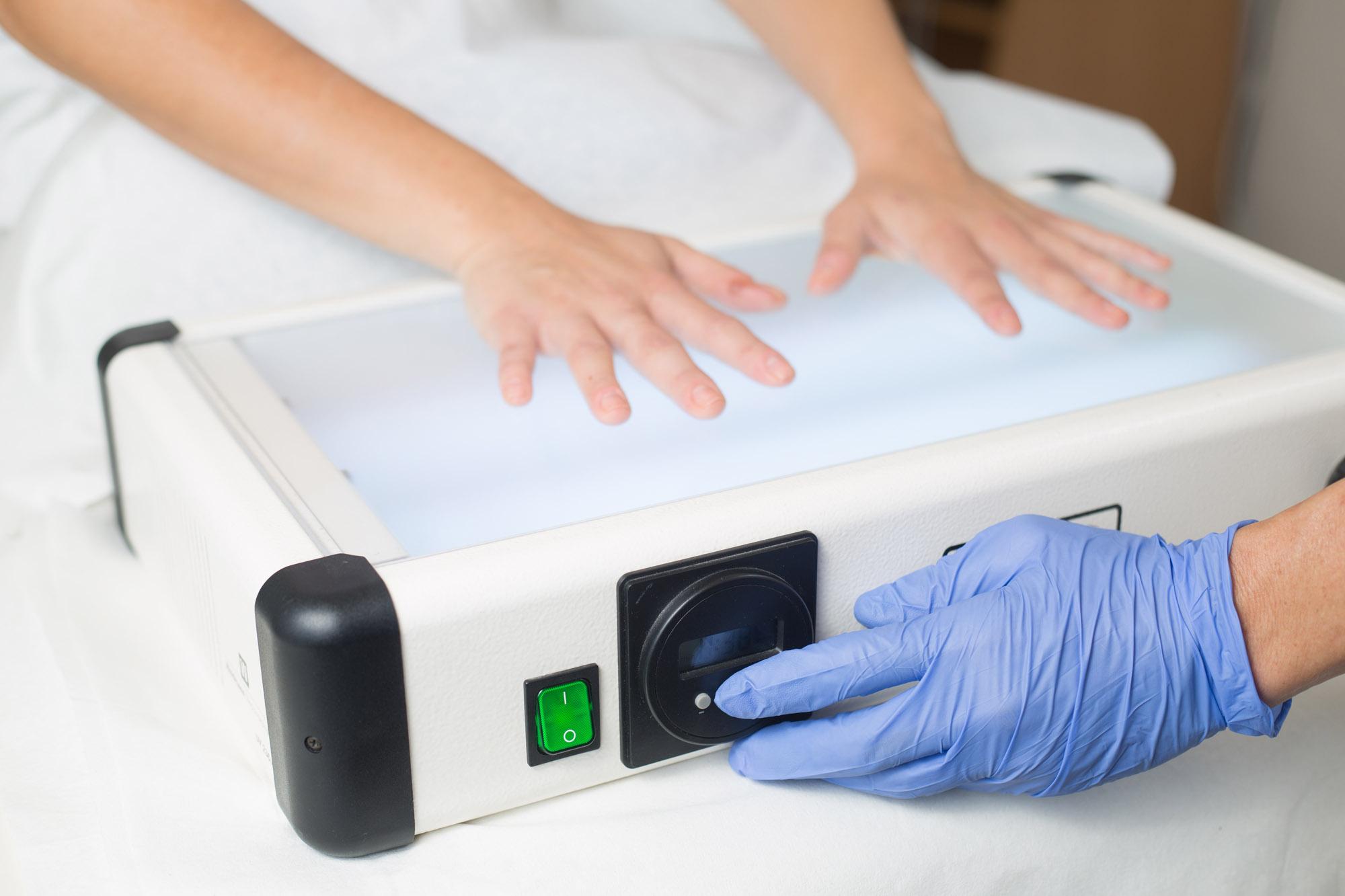 pikkelysömör uvb fényterápia - Természetes krém dermatitisz, ekcéma és psoriasis kezelésére