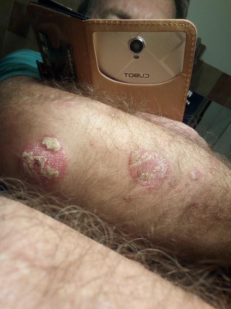 viaszkrém egészséges pikkelysömörről vélemények gyógynövények a bőr pikkelysömörének kezelésére