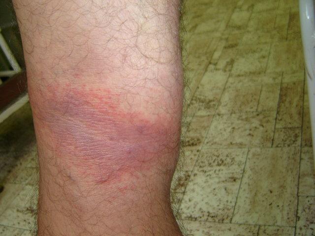 vörös folt jelent meg a lábán és megduzzadt)