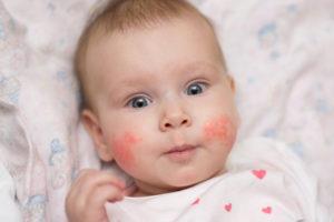 A homlokán egy piros növekvő pelyhes és viszkető folt megjelenése - Készítmények