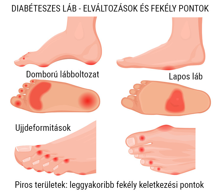 vörös foltok a lábakon cukorbetegség kezelésével)