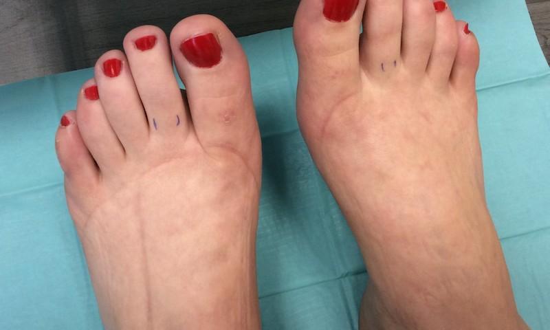 a lábán van valami vörös folt