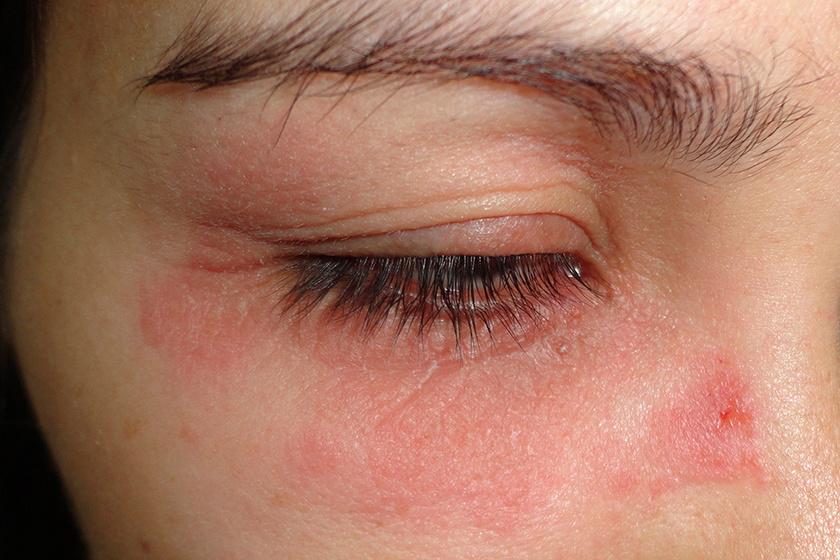 vörös foltok az arcon, könnyező szemek