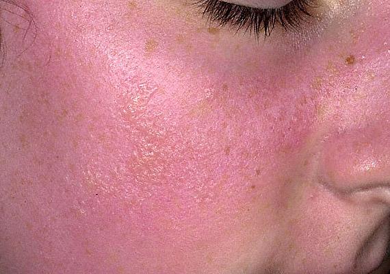 vörös foltok égtek ki az arcon fejbőr pikkelysömör kezelésére gyógyszerek vélemények
