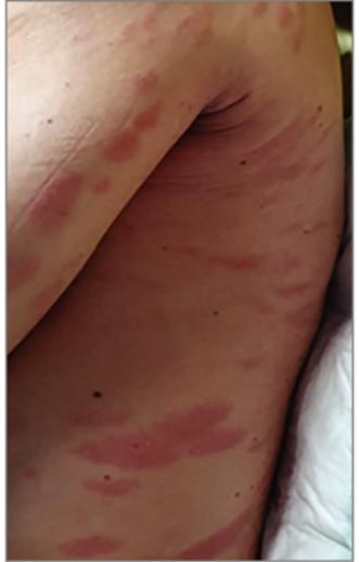 vörös foltok jelentek meg a hátán, és viszket, mi ez)