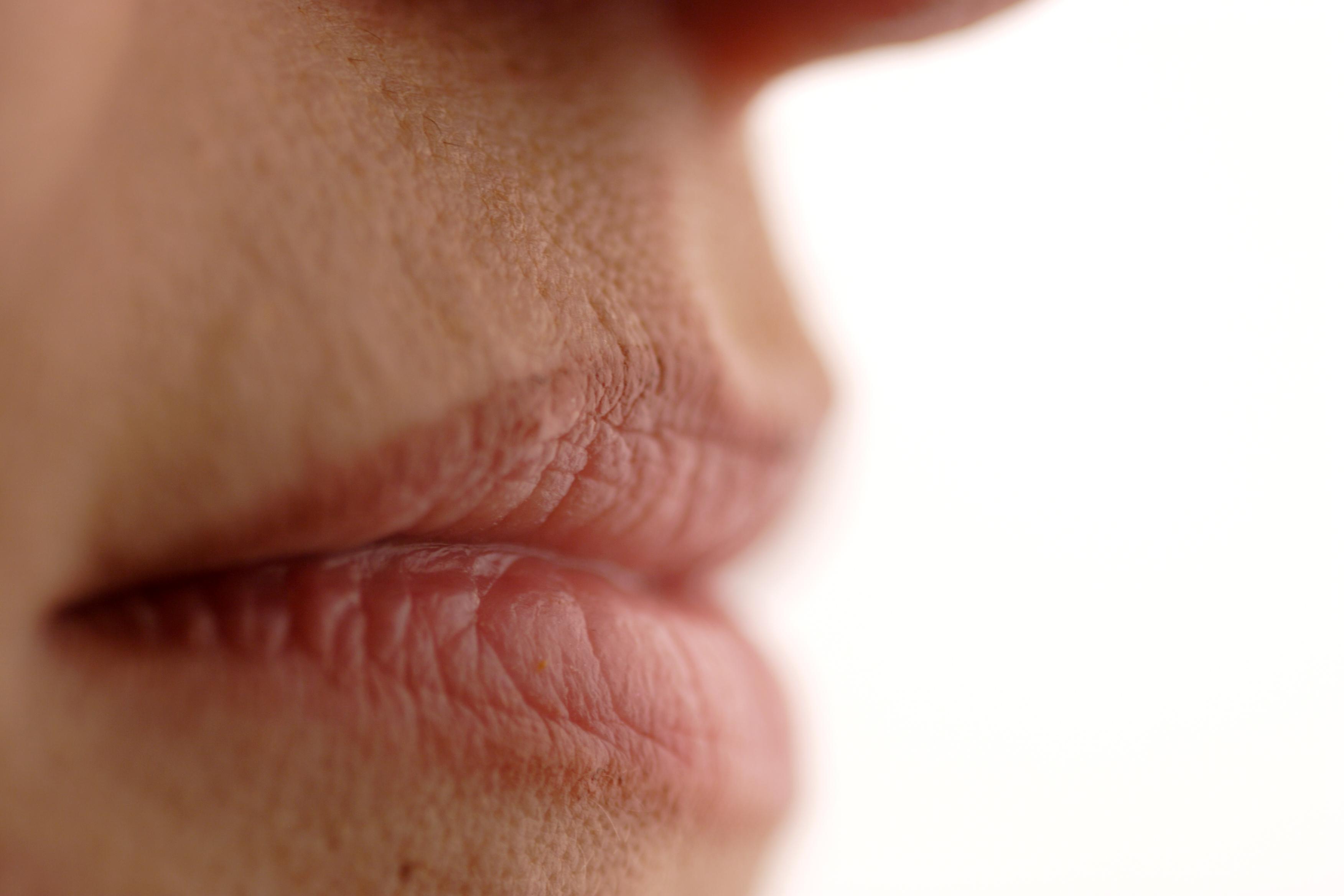 vörös foltok és hámlás az ajkak sarkában