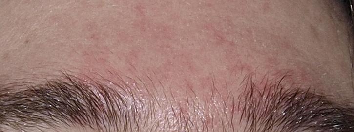 folt a piros színű fotó bőrén