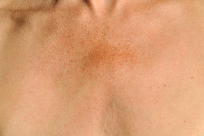 Bőrelszíneződések
