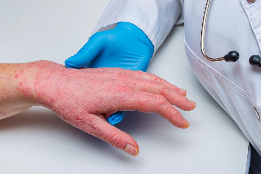 kátrányos szappan kezeli a pikkelysömör optimális pikkelysömör kezelés