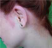 fájdalmas vörös folt a fejbőrön)