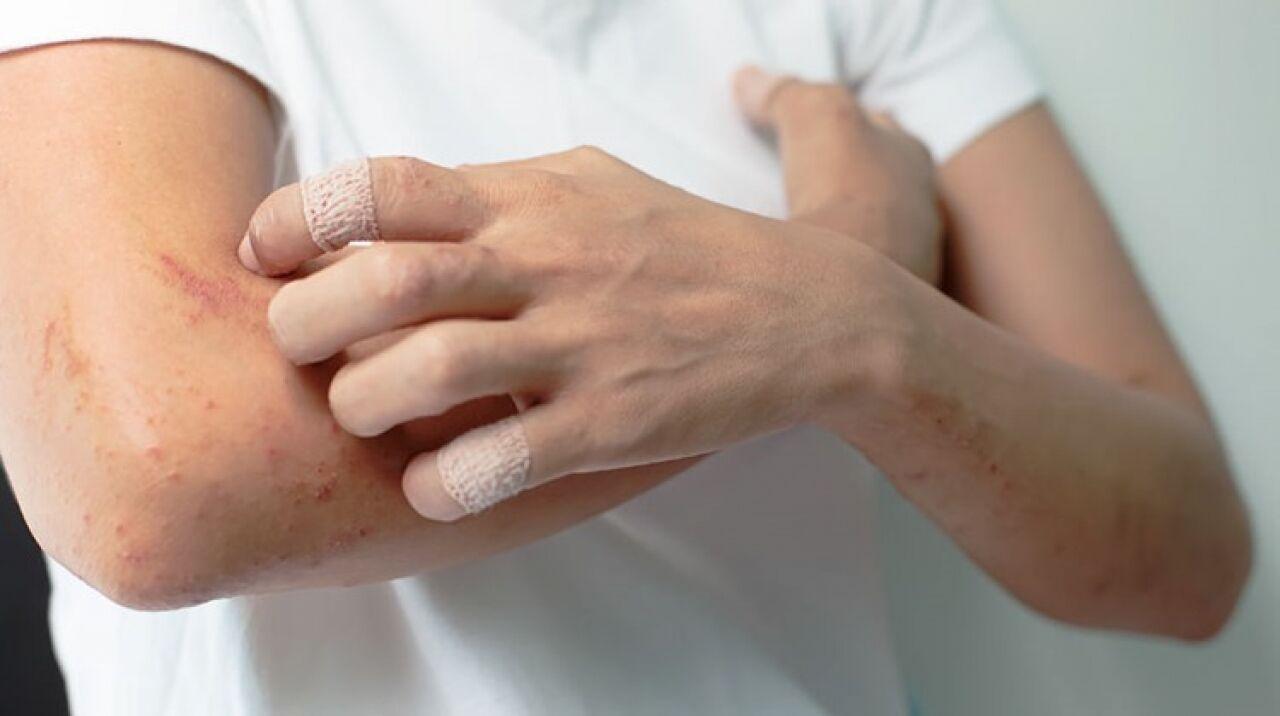pikkelysömör kezelésének költsége ami piros foltot jelent az arcon