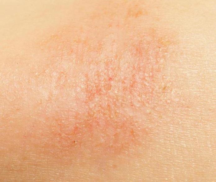 a bőrnek vörös száraz foltjai vannak és viszket)